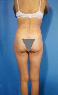 Buttocks Enhancement after 296690
