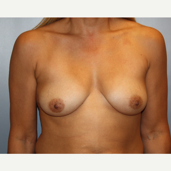 45-54 year old woman treated with Breast Augmentation before 3683516