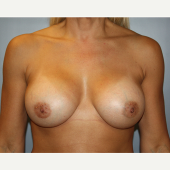 45-54 year old woman treated with Breast Augmentation after 3683516