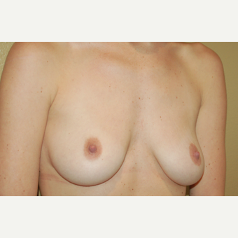 25-34 year old woman treated with Breast Lift with Implants before 3018903