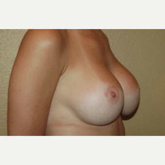 25-34 year old woman treated with Breast Lift with Implants after 3018903