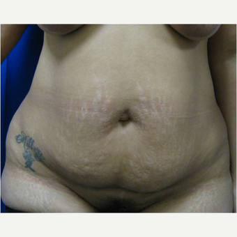 32 year old woman treated with Tummy Tuck before 3726619