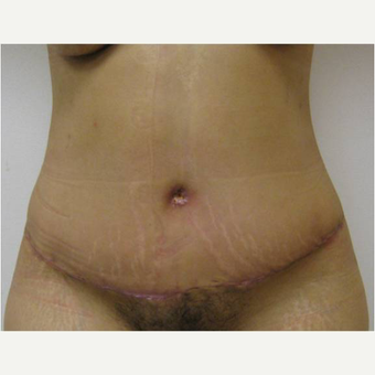 32 year old woman treated with Tummy Tuck after 3726619