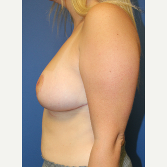 25-34 year old woman treated with Breast Reduction after 3571189