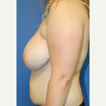 25-34 year old woman treated with Breast Reduction before 3571189