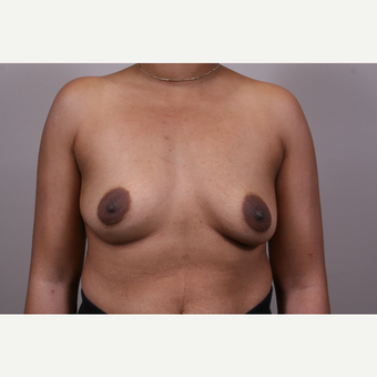 35-44 year old woman treated with Breast Augmentation before 3769352