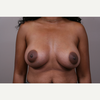 35-44 year old woman treated with Breast Augmentation after 3769352