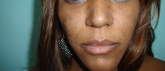 33 year old female treated with African American Rhinoplasty