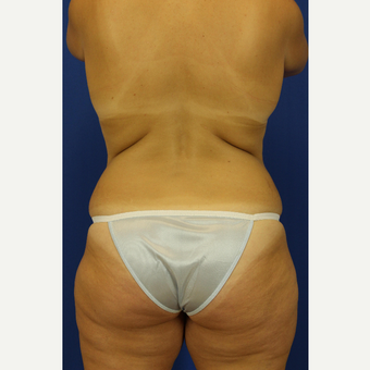 35-44 year old woman treated with Liposuction before 3748232