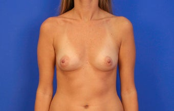 25-34 year old woman treated with Breast Implants before 3499747