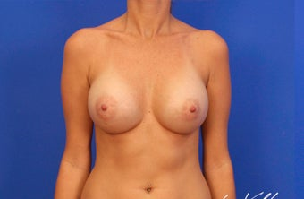 25-34 year old woman treated with Breast Implants after 3499747
