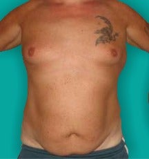 45-54 year old man treated with Tummy Tuck before 3247509