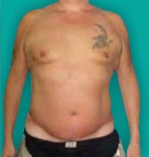 45-54 year old man treated with Tummy Tuck after 3247509