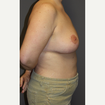 35-44 year old woman treated with Breast Lift after 3140677