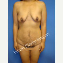 25-34 year old woman treated with Breast Lift with Implants before 3782595