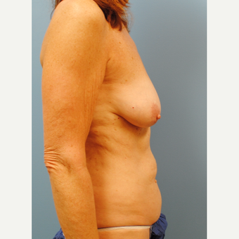 55-64 year old woman treated with Mommy Makeover before 3088107