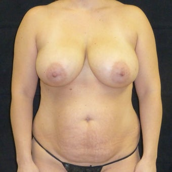 35-44 year old woman treated with Mommy Makeover before 1731020