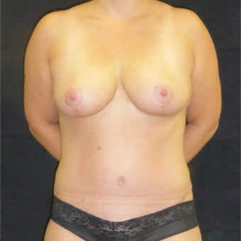35-44 year old woman treated with Mommy Makeover after 1731020