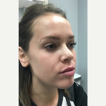 18-24 year old woman treated with Juvederm Volbella after 3769742