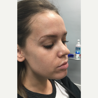 18-24 year old woman treated with Juvederm Volbella before 3769742