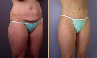Tummy Tuck before 271079