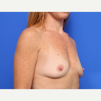 35-44 year old woman treated with Breast Implants