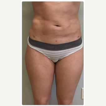 25-34 year old woman treated with Smart Lipo after 3098182