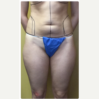 25-34 year old woman treated with Smart Lipo before 3098182