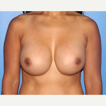 35-44 year old woman treated with Breast Implant Revision after 3245765