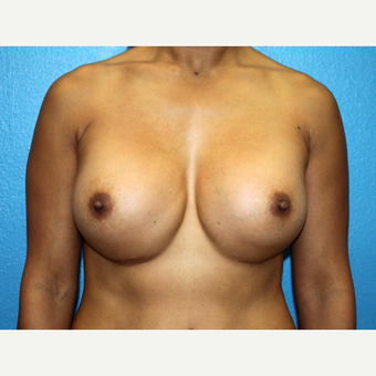 35-44 year old woman treated with Breast Implant Revision before 3245765