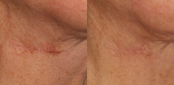 Laser Treatment for Scar Removal  before 1317964
