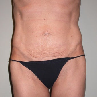 35-44 year old woman treated with Tummy Tuck before 1959780