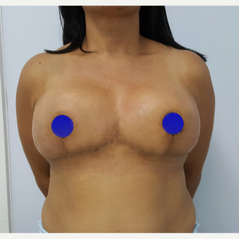 25-34 year old woman treated with Breast Reduction after 3602795