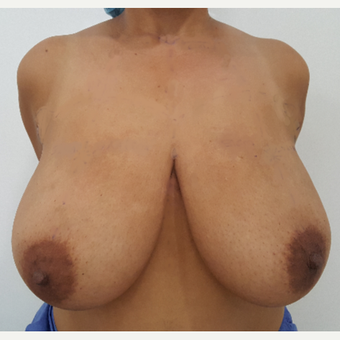 25-34 year old woman treated with Breast Reduction before 3602795