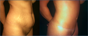 37 Year Old Female Tummy Tuck  1359161