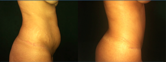 37 Year Old Female Tummy Tuck  after 1359161