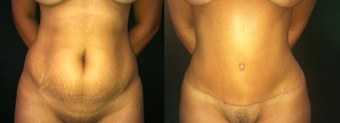 37 Year Old Female Tummy Tuck  before 1359161