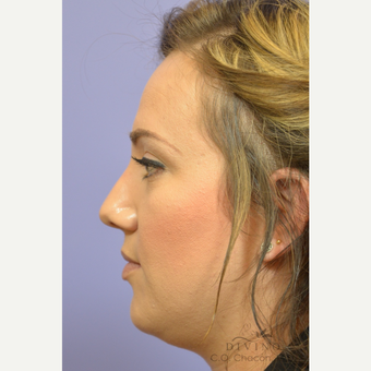 25-34 year old woman treated with Rhinoplasty before 3391950