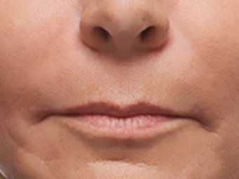 45-54 year old woman treated with Juvederm after 1687052