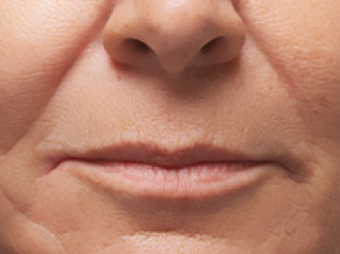 45-54 year old woman treated with Juvederm before 1687052
