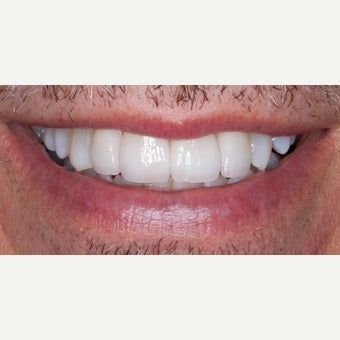 45-54 year old man treated with Teeth Whitening