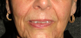 Non-surgical Lip Augmentation before 896420