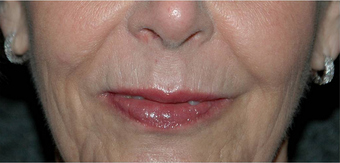 Non-surgical Lip Augmentation after 896420