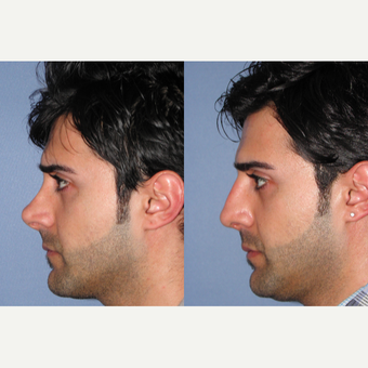 35-44 year old man treated with Revision Rhinoplasty before 3522829