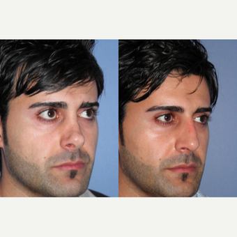 35-44 year old man treated with Revision Rhinoplasty after 3522829