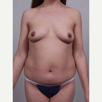 25-34 year old woman treated with Mommy Makeover before 3769653