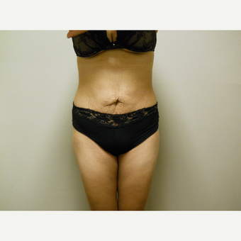 25-34 year old woman treated with Liposuction after 3454798