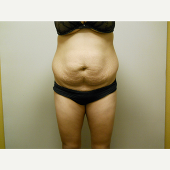 25-34 year old woman treated with Liposuction before 3454798