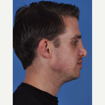 25-34 year old man treated with Revision Rhinoplasty before 3434521