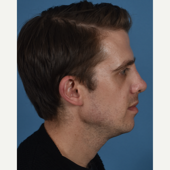 25-34 year old man treated with Revision Rhinoplasty after 3434521